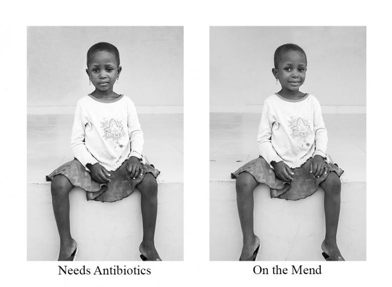 Needs Antibiotics / On the Mend